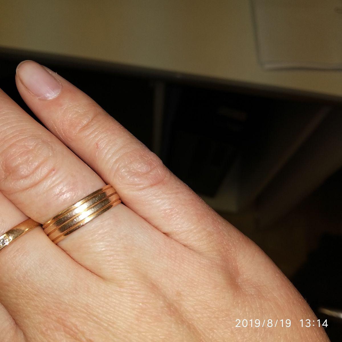 Нормальное кольцо